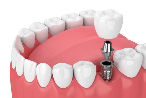 What Are Dental Implants 4.jpg